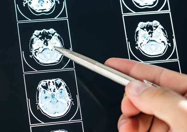 CDV_EspecialidadesMedicas__0008_neurologia